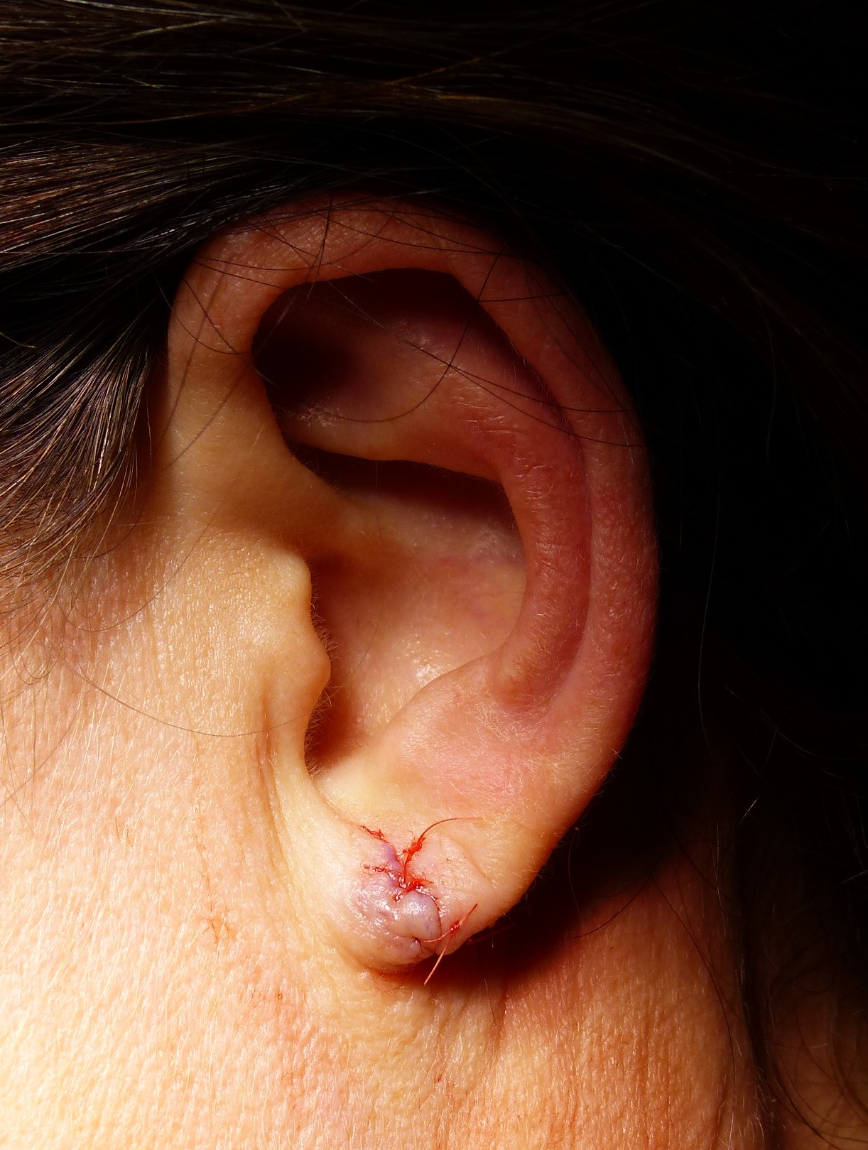 split earlobe Immediate result after repair with absorbable sutures