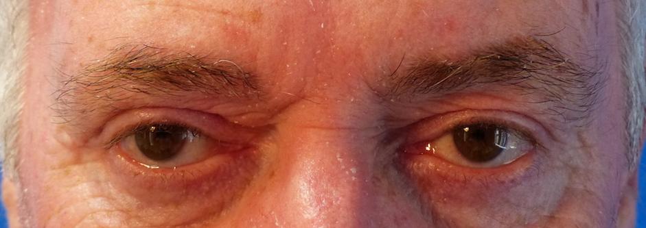 oliver harley eyelid surgery