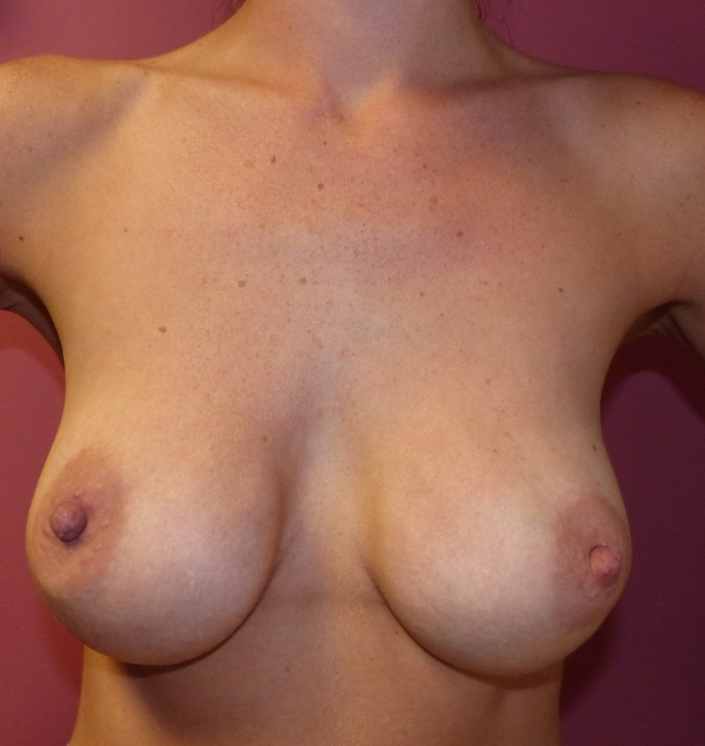 breast capsule change of implants