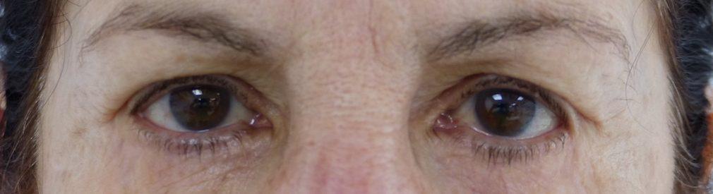 harley eyelid surgery