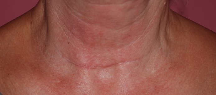 thyroid scar revision after surgery