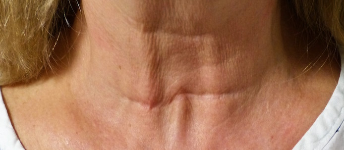 thyroid scar revision before surgery
