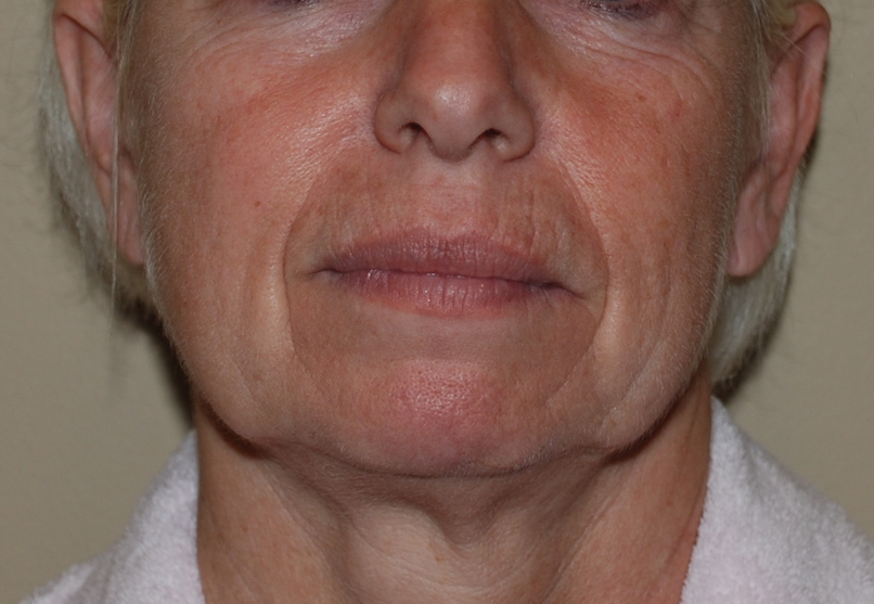 facelift pre operative harley plastic surgery
