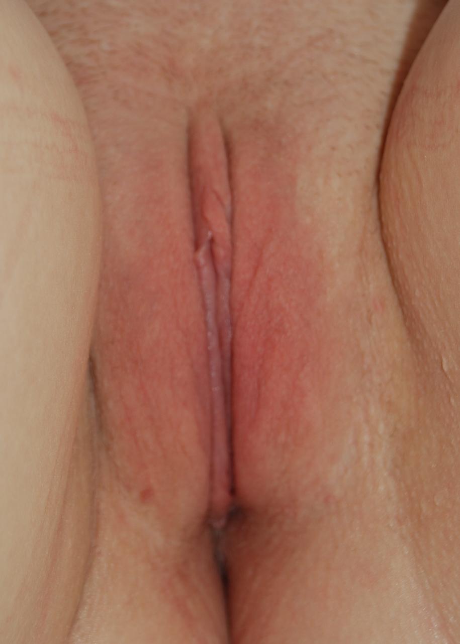 labiaplasty post op harley