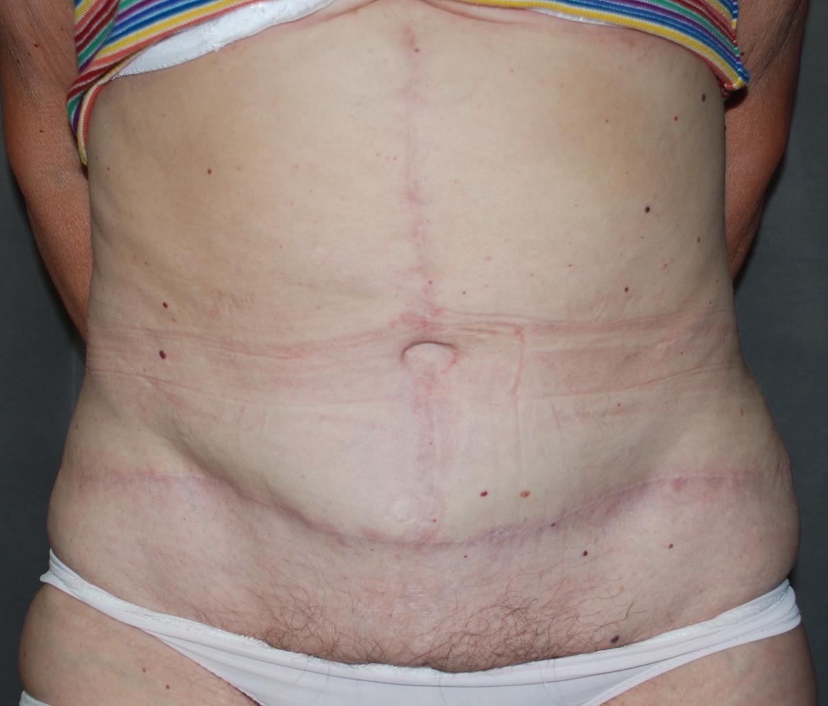massive weight loss fleur de lis abdominoplasty