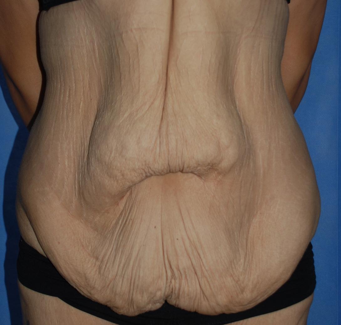 massive weightloss tummy tuck fleur de lis