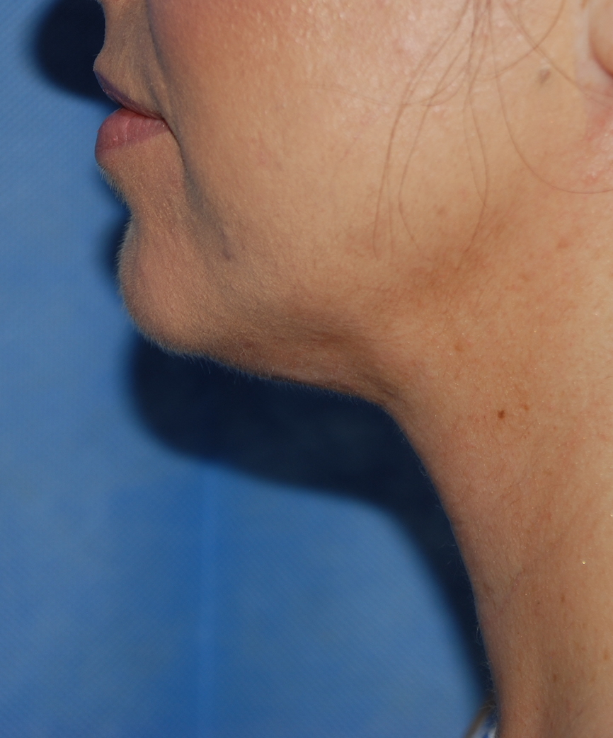 after neck liposuction