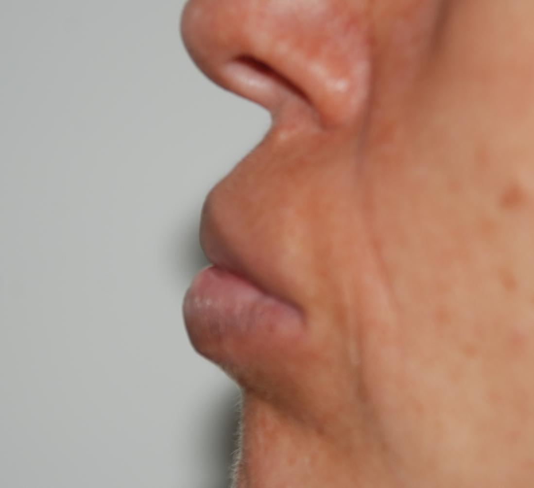 lip filler removal aquamid