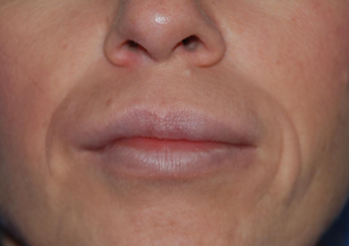 after aquamid lip filler removal