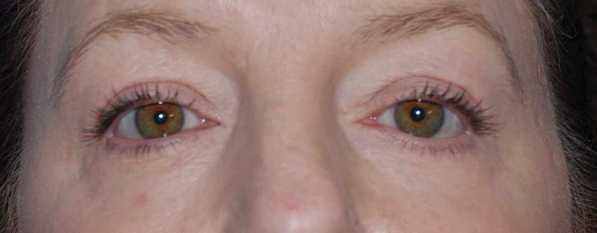 eyelid surgery east grinstead harley