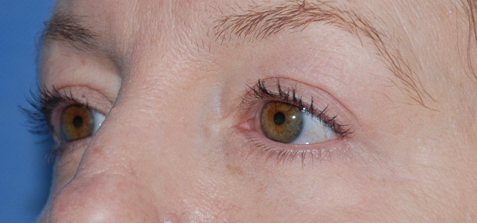 upper and lower eyebags cosmetic surgery
