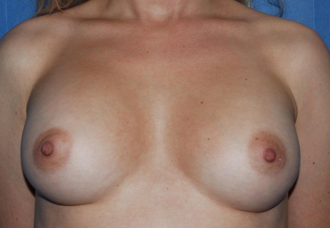 Breast enlargement near brighton oliver harley