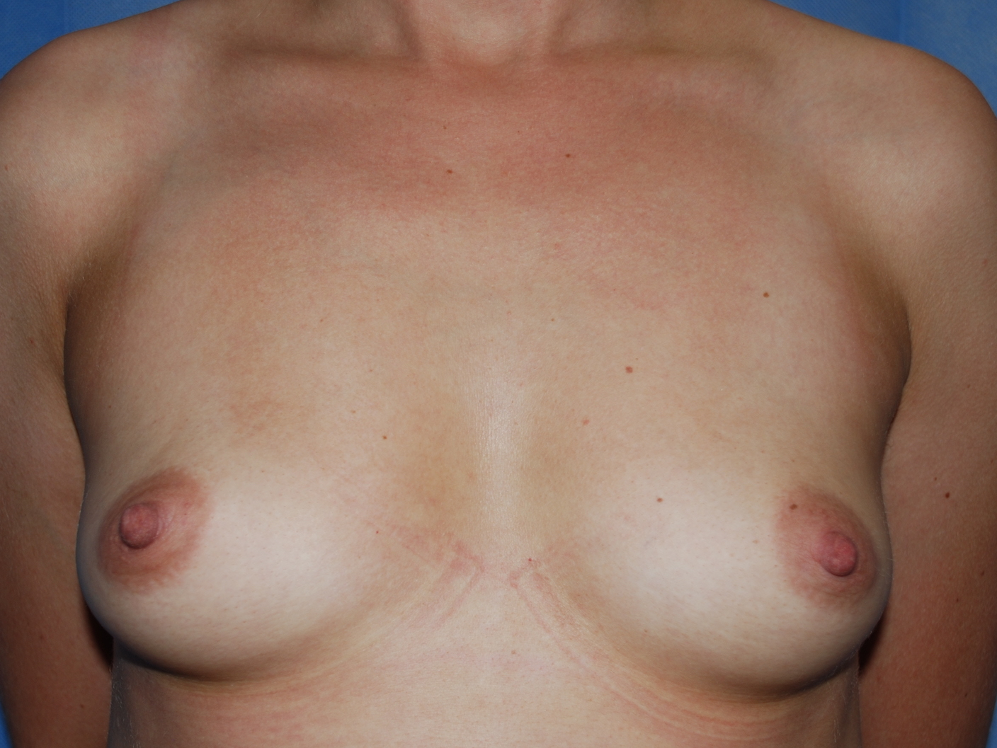 breast enlargement oliver harley cosmetic surgeon