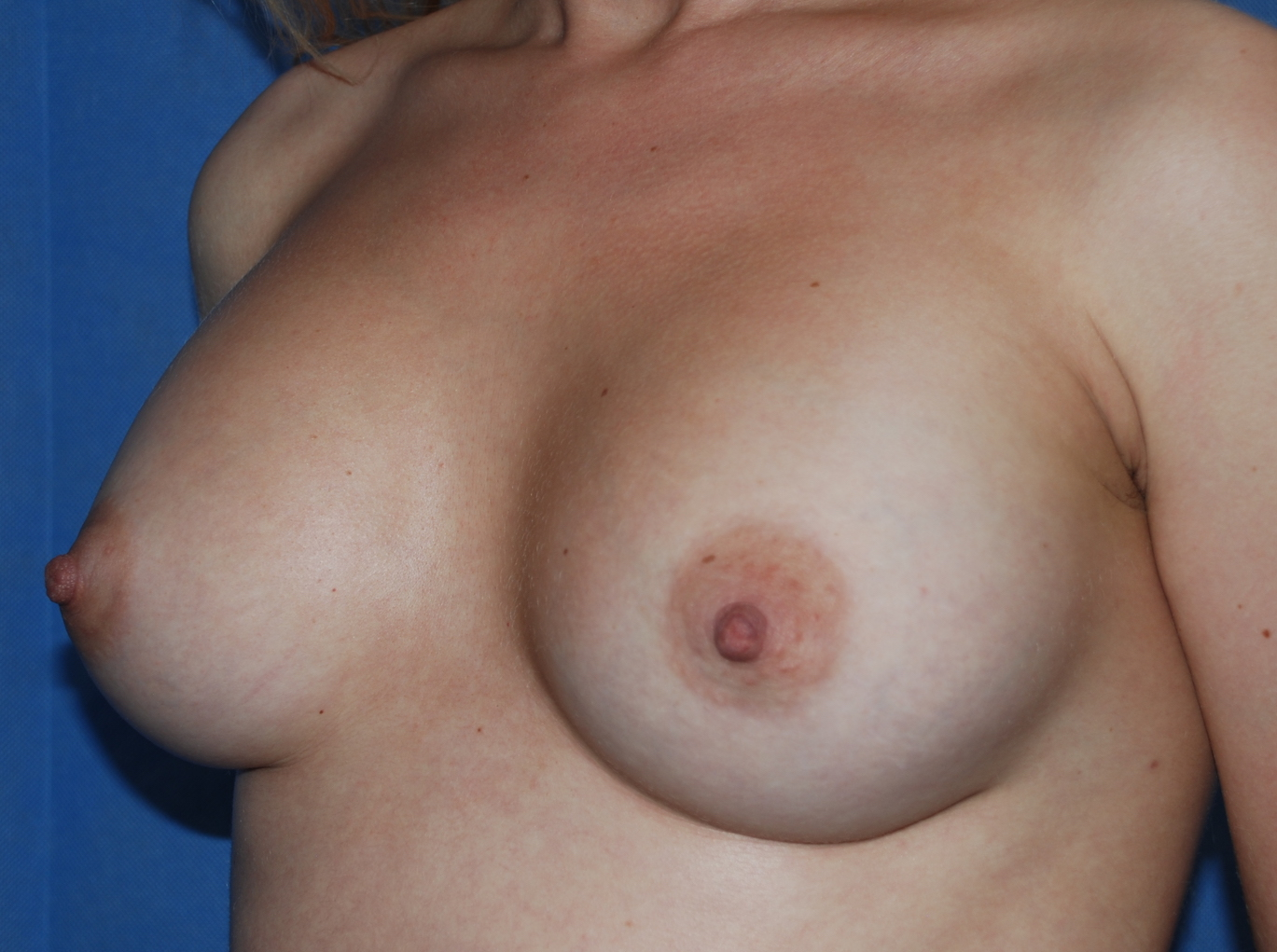 3 months after boob job mcindoe centre sussex near brighton