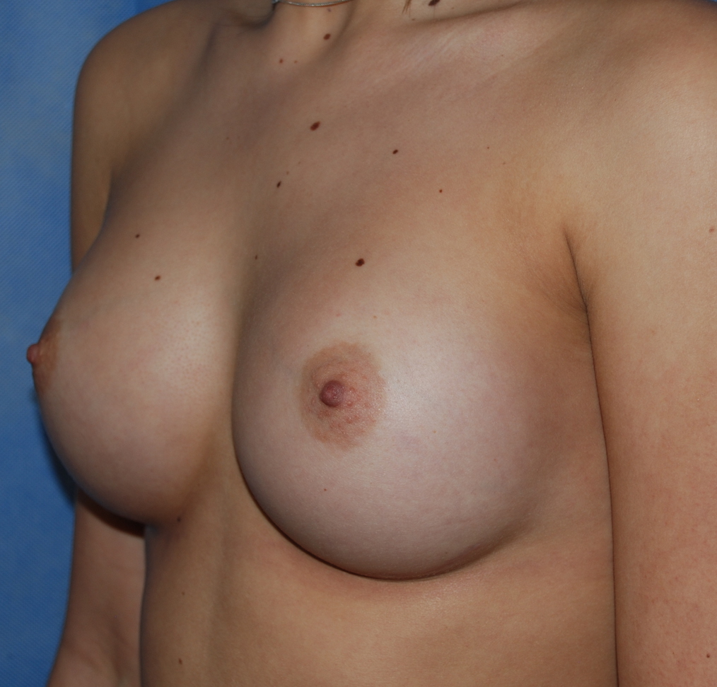 breast implants oliver harley cosmetic surgery