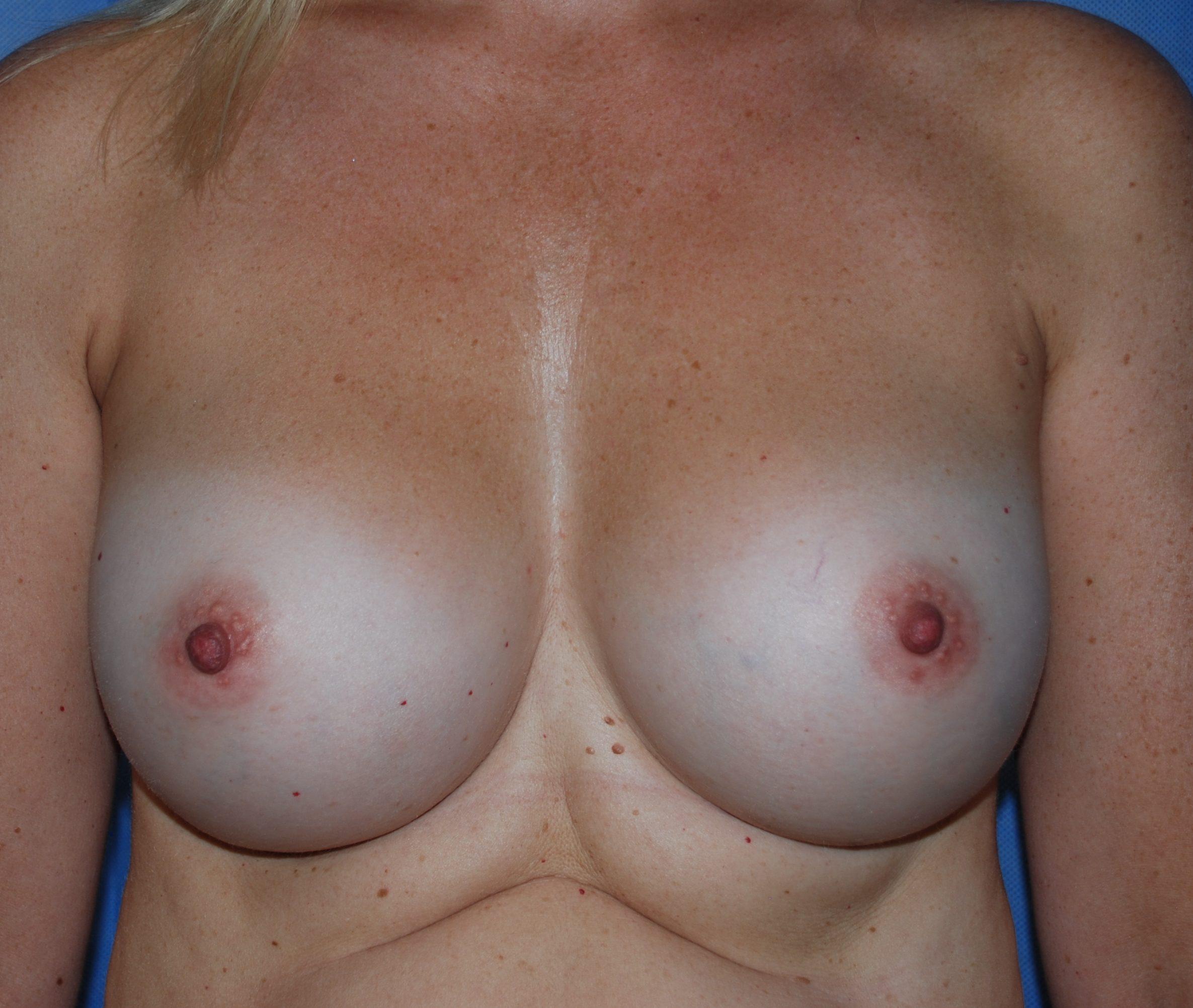 boobs bigger oliver harley cosmetic surgeon crawley