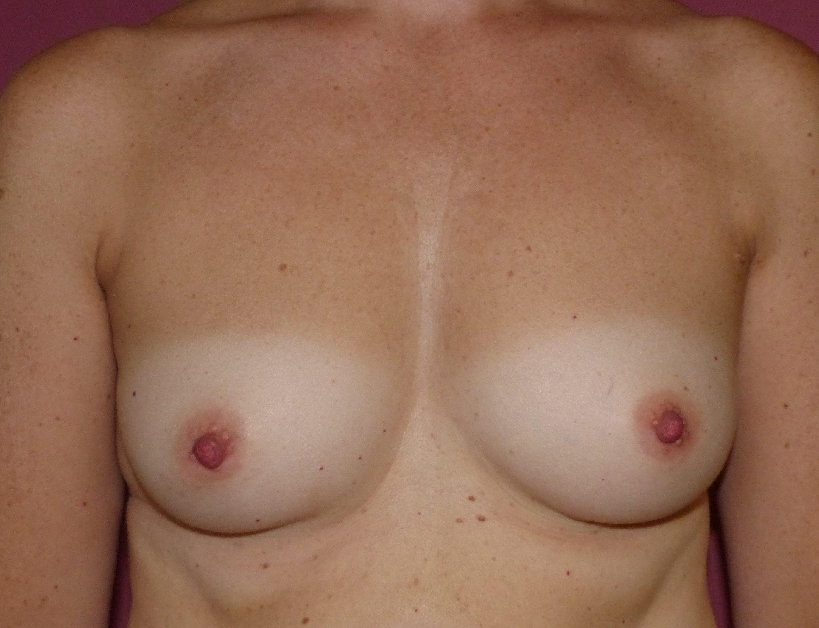 boob job harley cosmetic mcindoe centre sussex