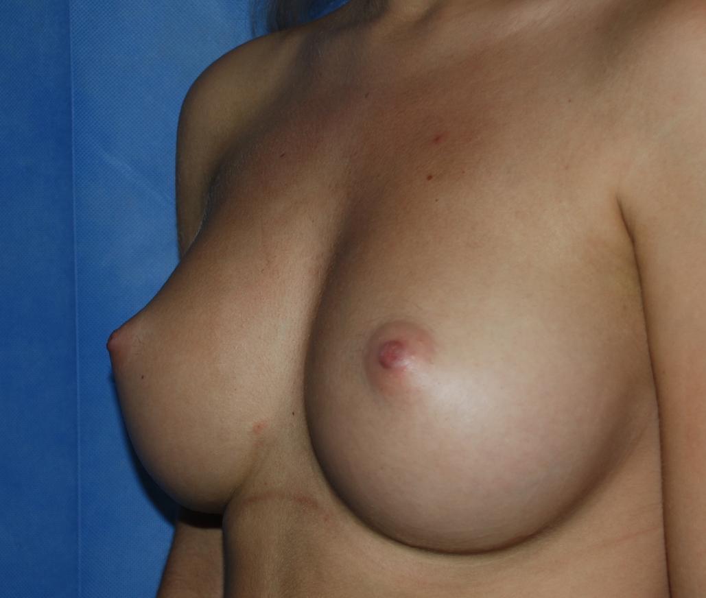 breast implants harley brighton