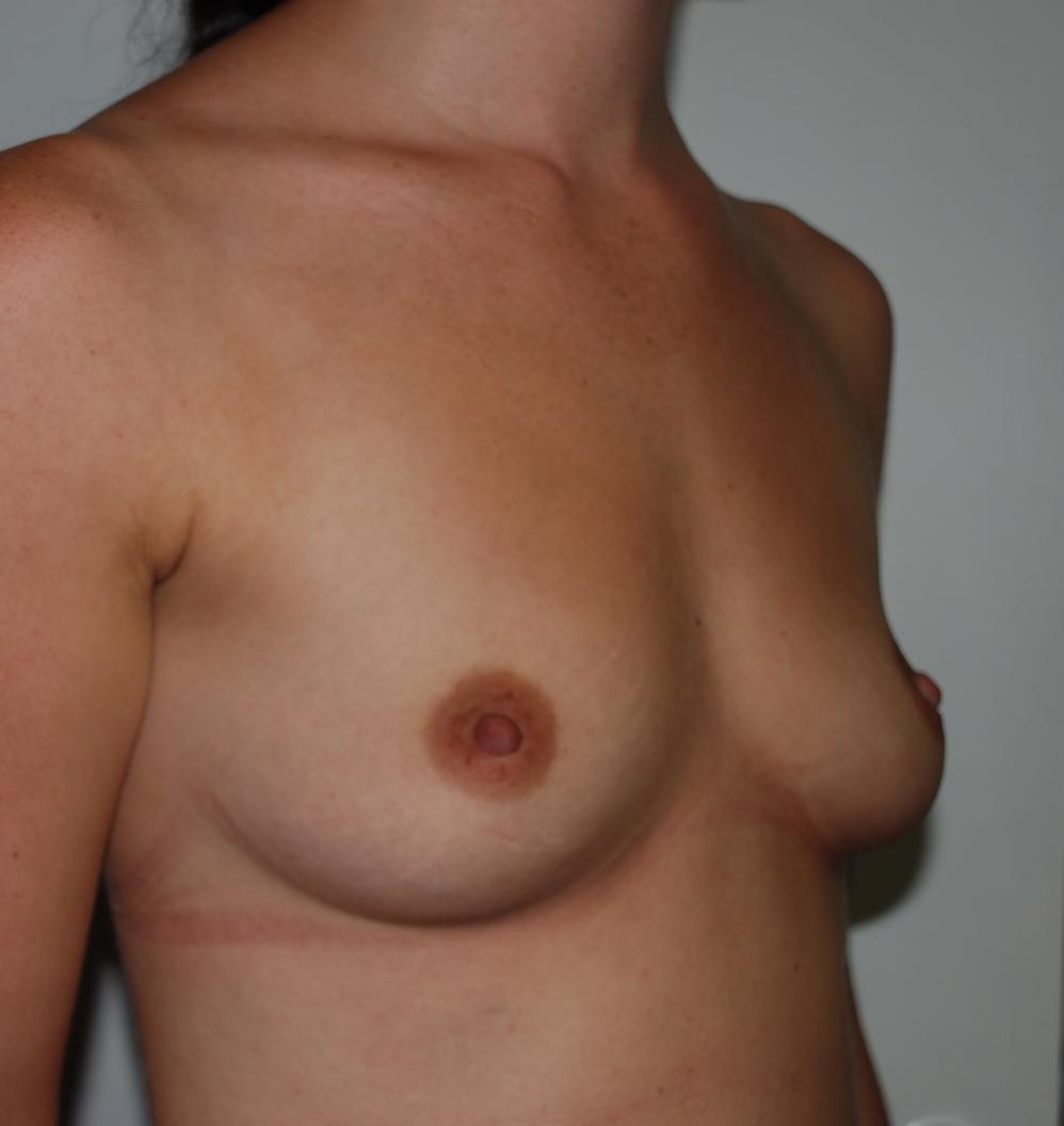 oliver harley boob job