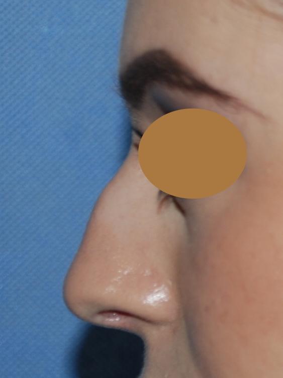 harley rhinoplasty pre-op