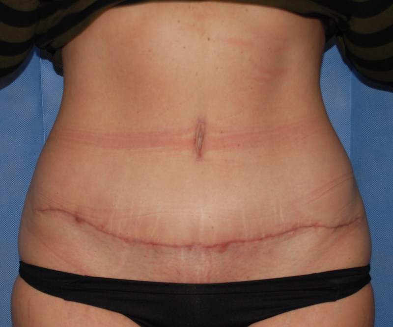 abdominoplasty after surgery