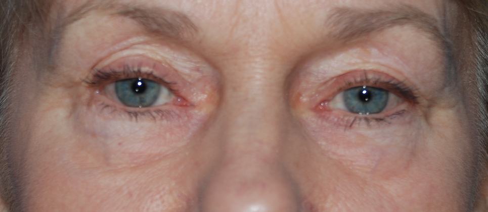 lower blepharoplasty crawley