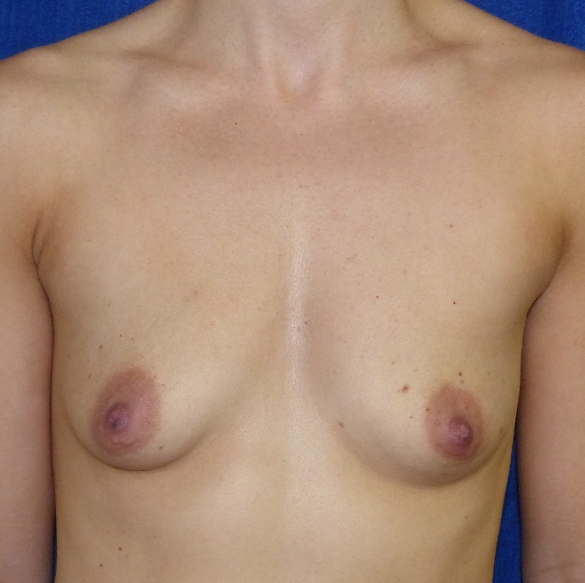 breast augmentation pre-op