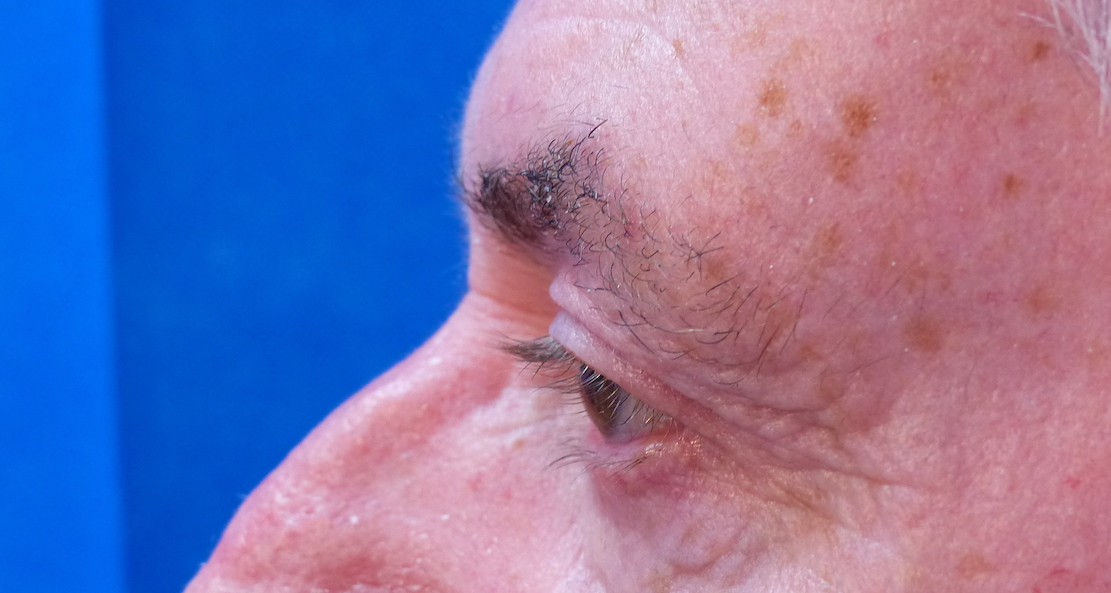 harley male upper blepharoplasty