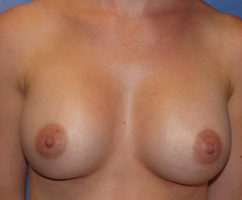 harley boob job 360cc