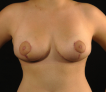 oliver harley plastic surgeon breast reduction after surgery
