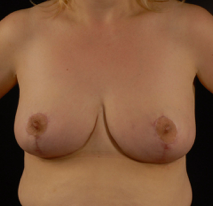 oliver harley plastic surgeon breast reduction 1