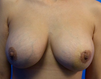 breast implant exchange post op.  capsulectomy treatment