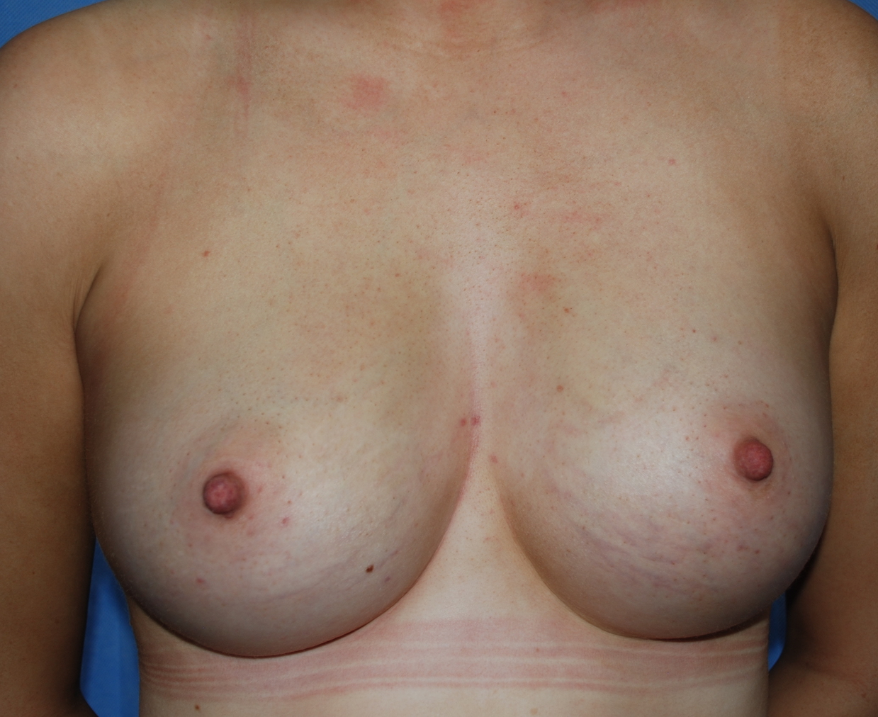 breast asymmetry boob job tunbridge wells