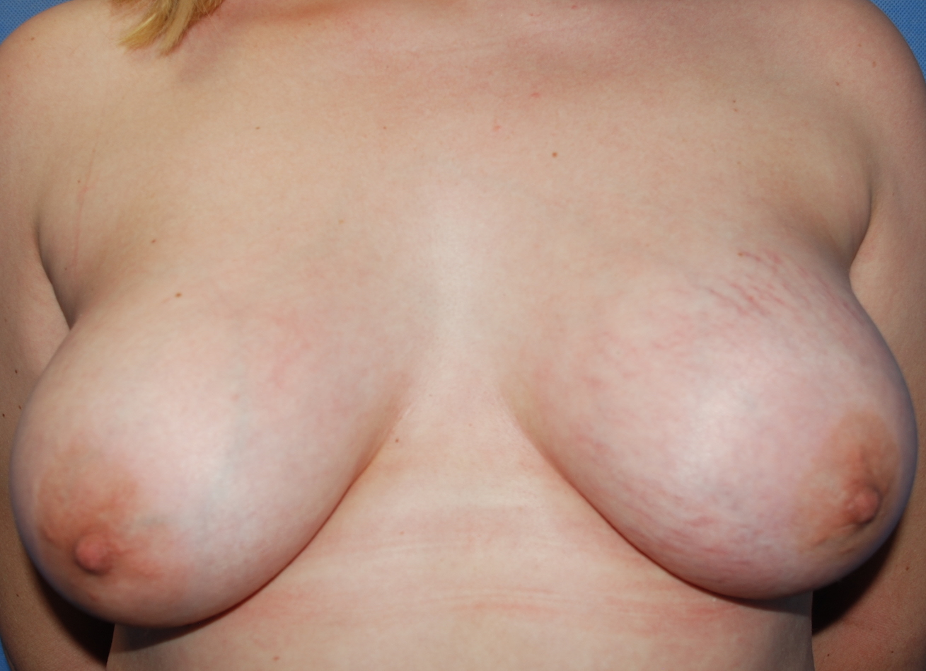 boobs different cosmetic surgery