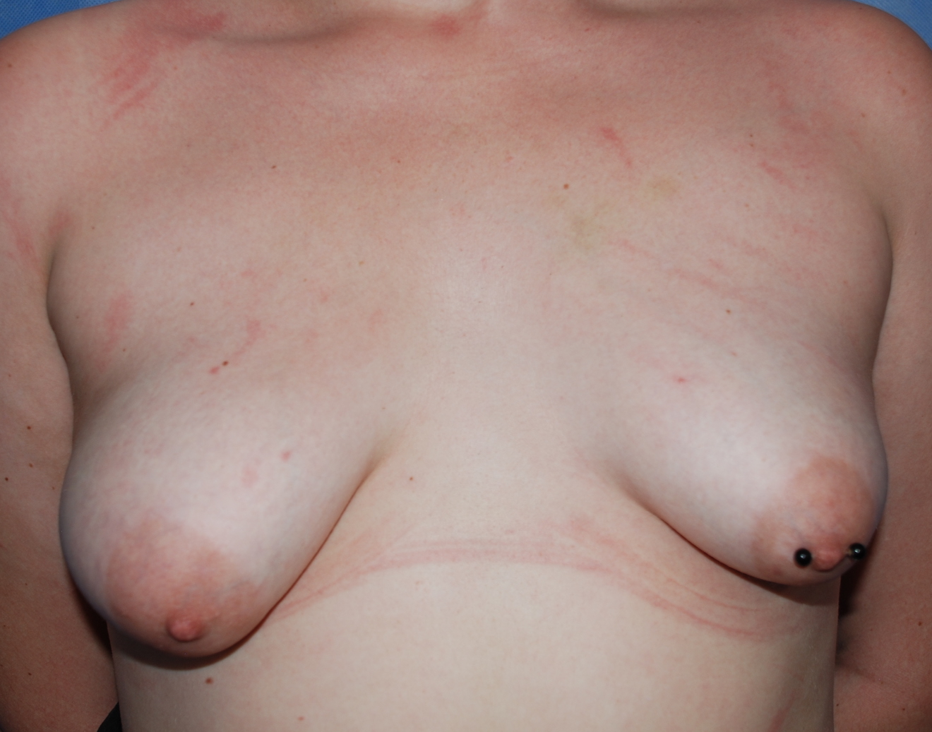 tubular breast asymmetry harley crawley cosmetic surgery