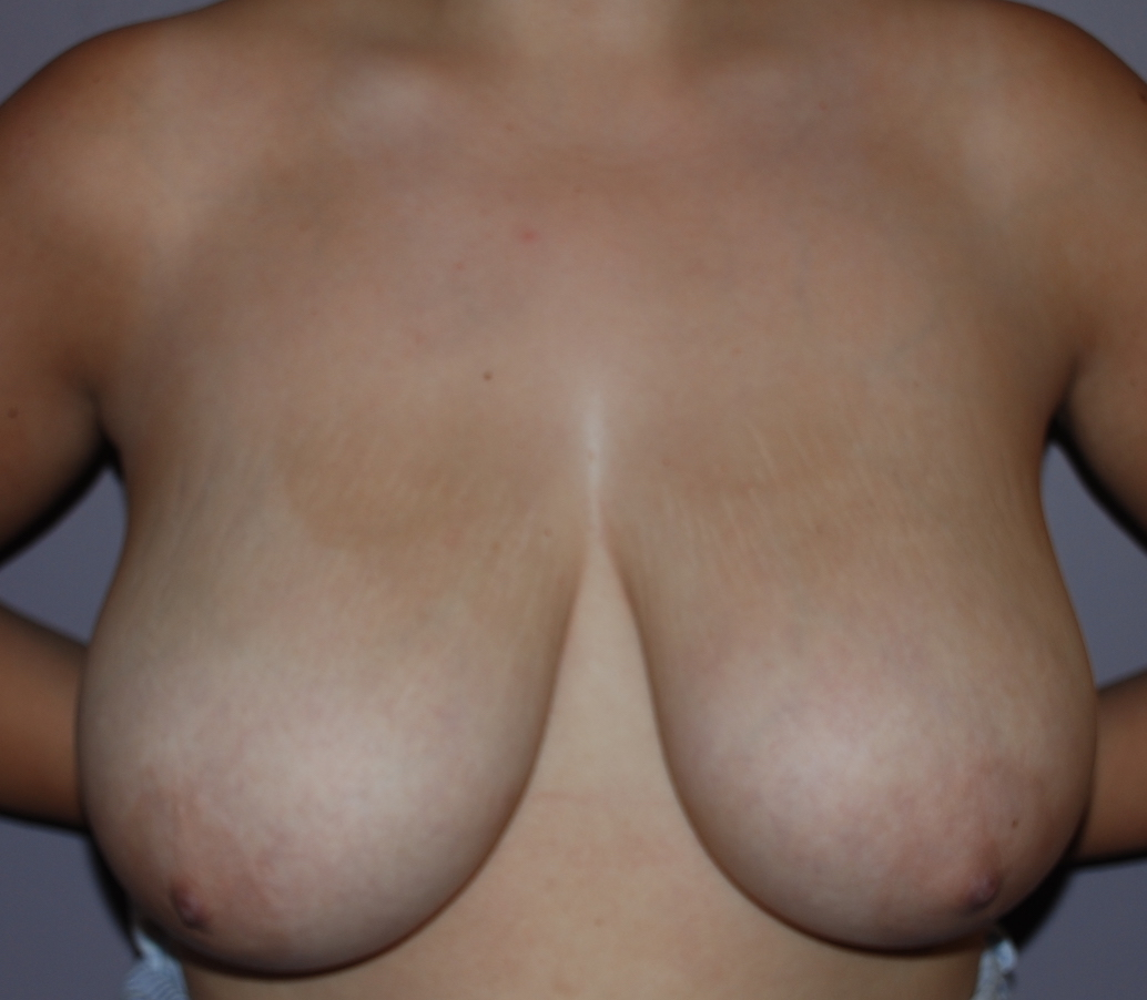 breast reduction harley cosmetic surgeon kims pre op