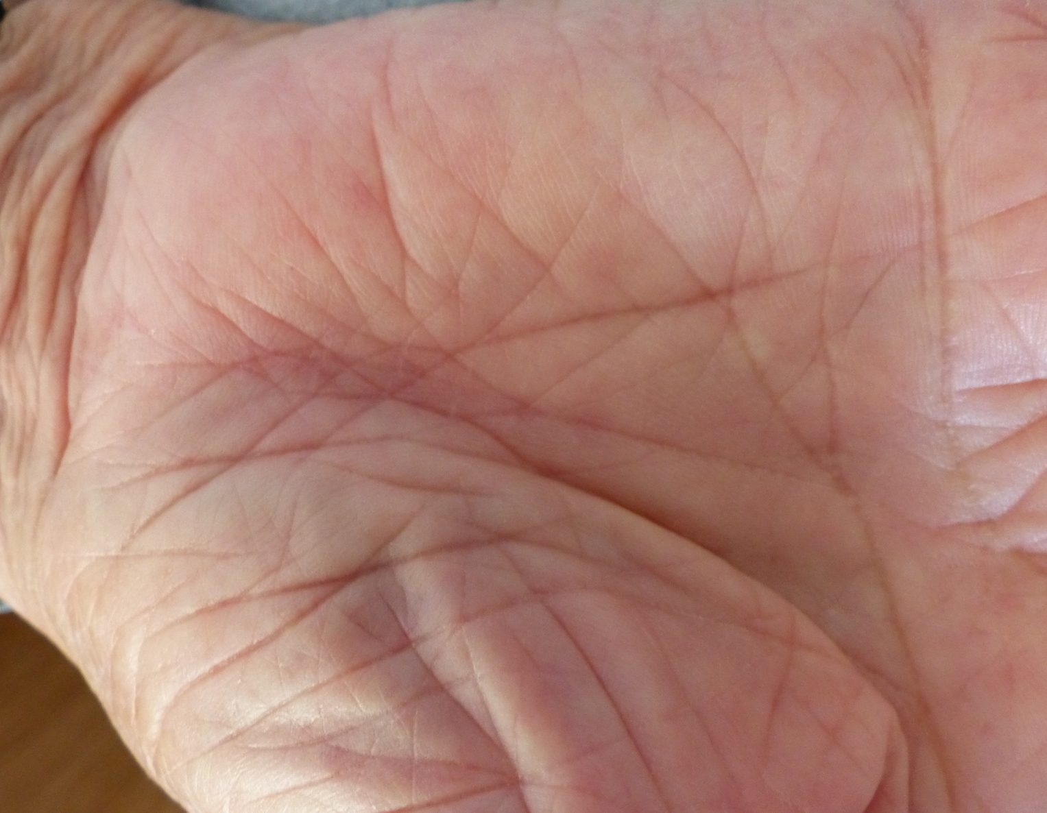 carpal tunnel surgery wound healing