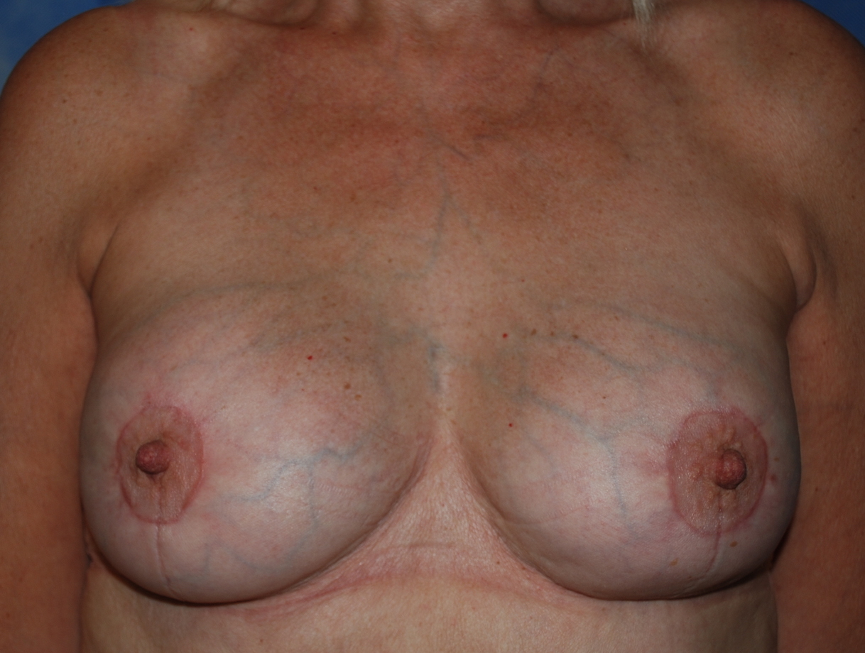 old breast implants exchange and uplift