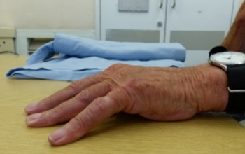 dupuytrens contracture before treatment.  not able to straighten fingers