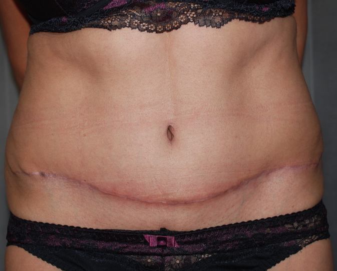 tummy fold lipoabdominoplasty