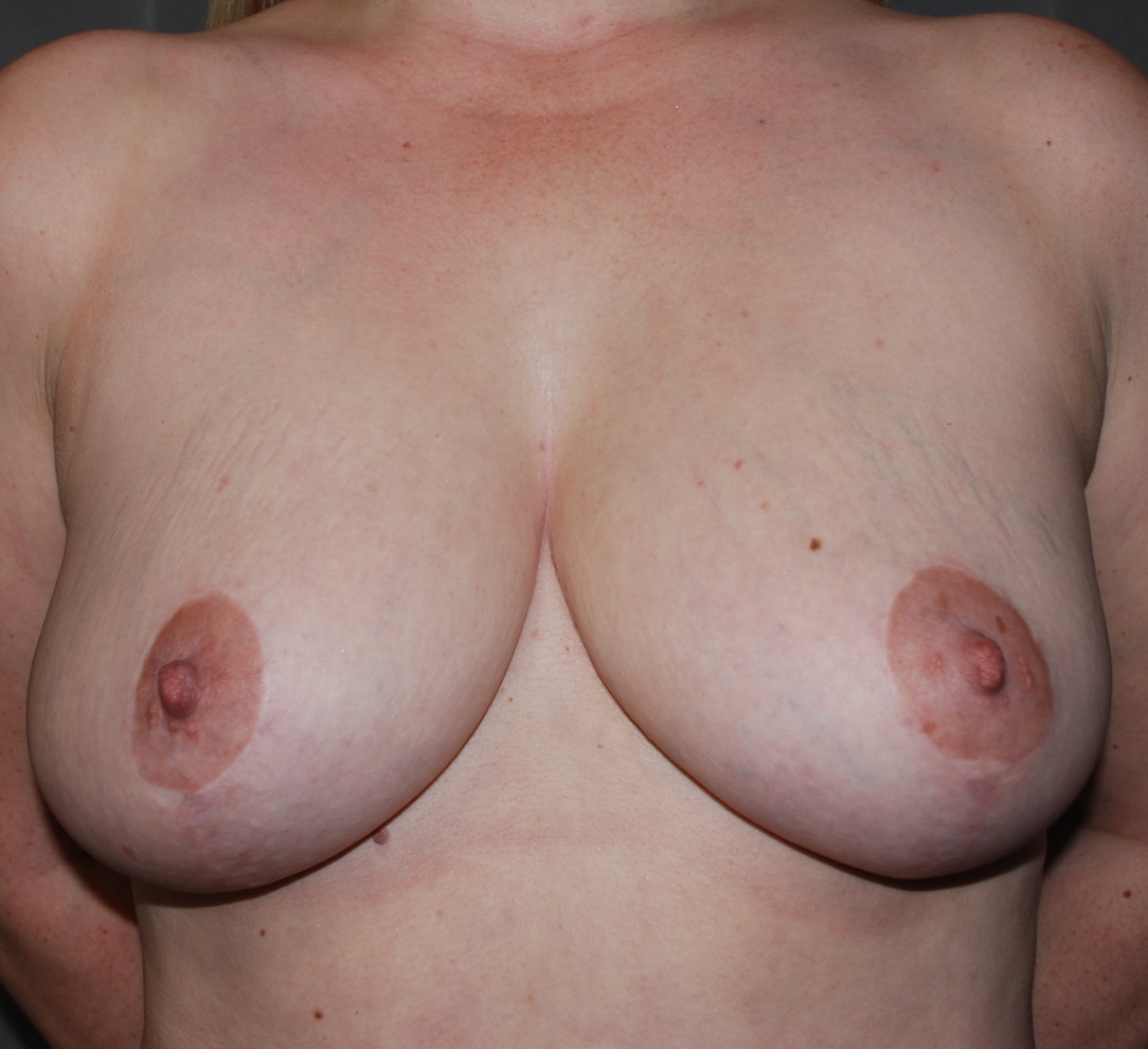 breast uplift kent KIMS oliver harley