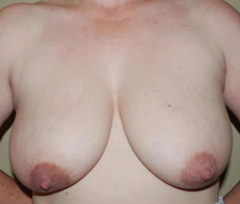 breast uplift harley cosmetic surgery tunbridge wells
