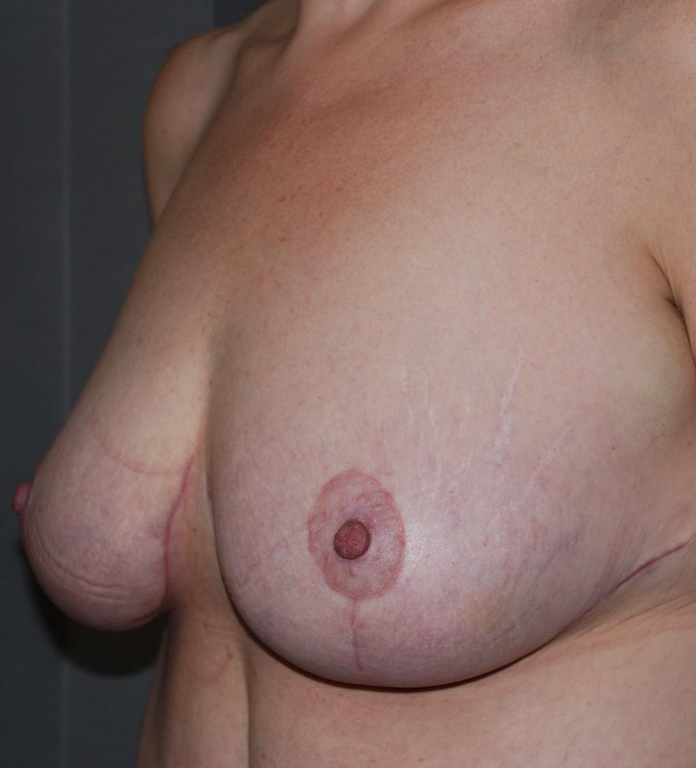 mastopexy oliver harley cosmetic surgery croydon