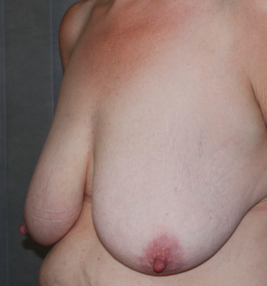 mastopexy oliver harley plastic surgery croydon