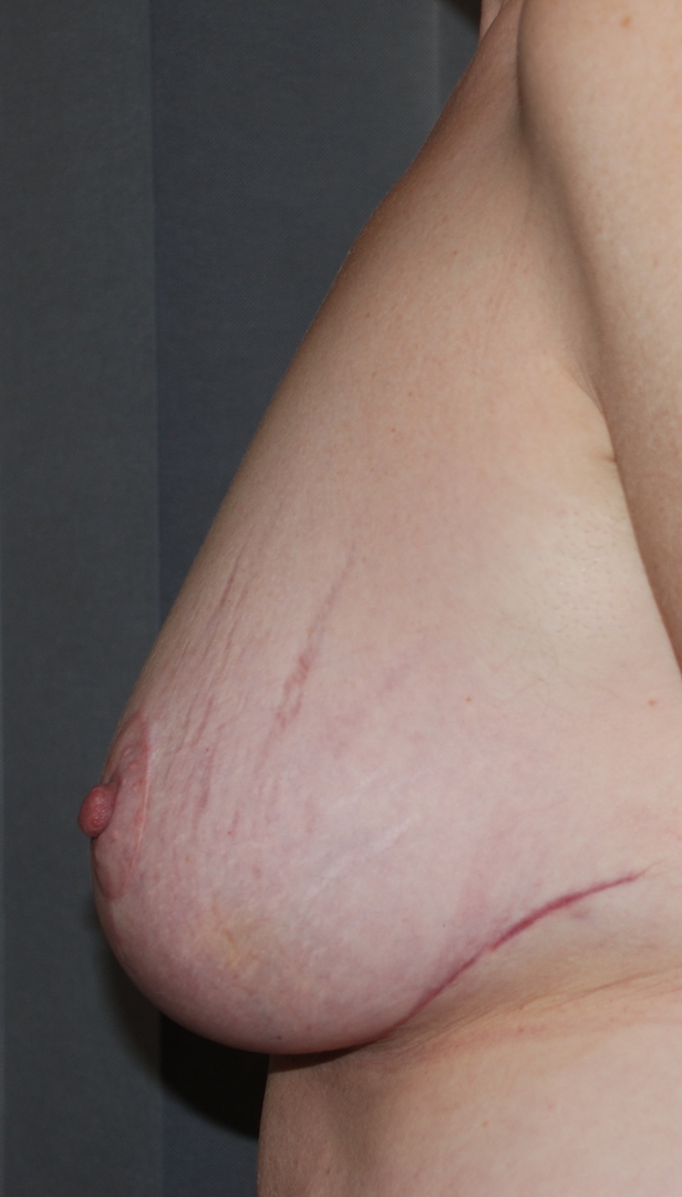 droopy breasts cosmetic surgery sussex