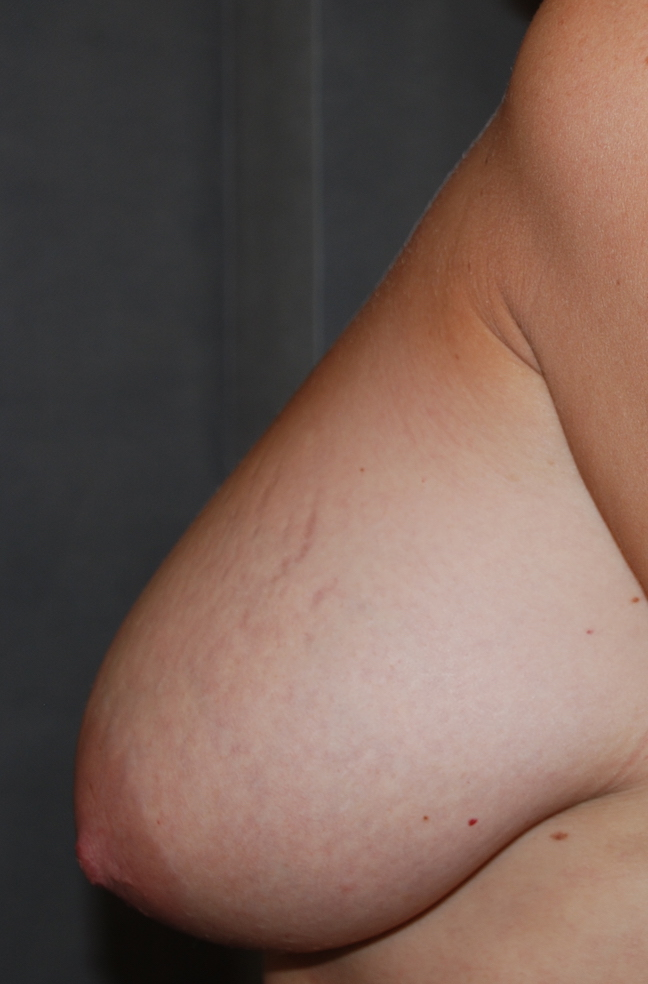 breast uplift maidstone harley