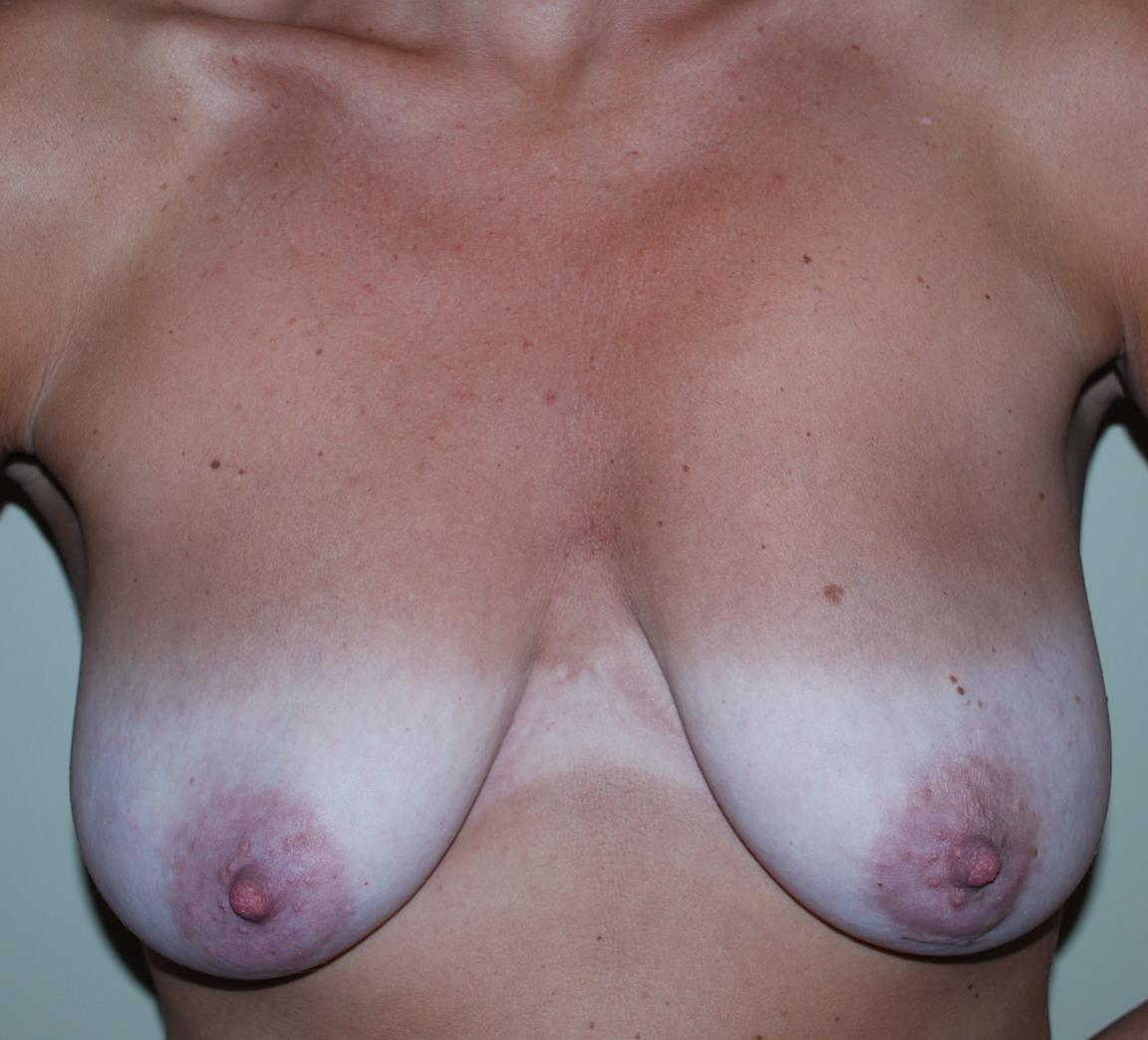 boob uplift harley plastic surgery reigate