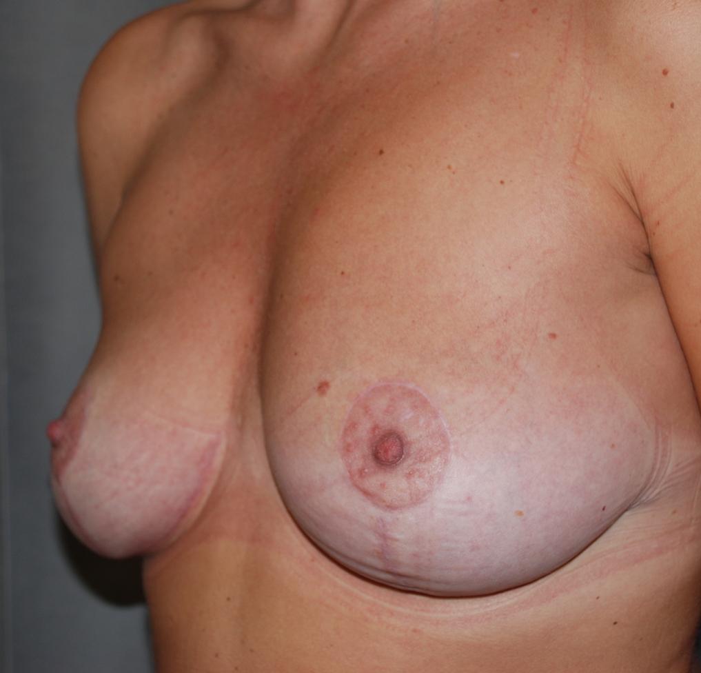 doopy breasts harley cosmetic surgery crawley