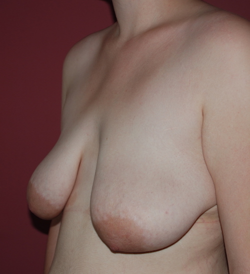 What is the difference between saggy breasts and large breasts