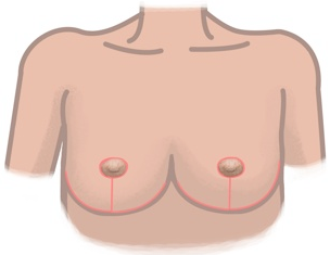 breast reduction diagram technique and pattern of inverted t scar